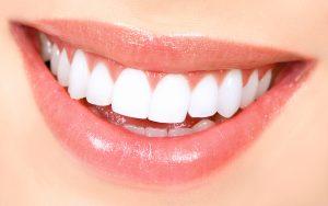 תמר סמייל - חיוך מושלם